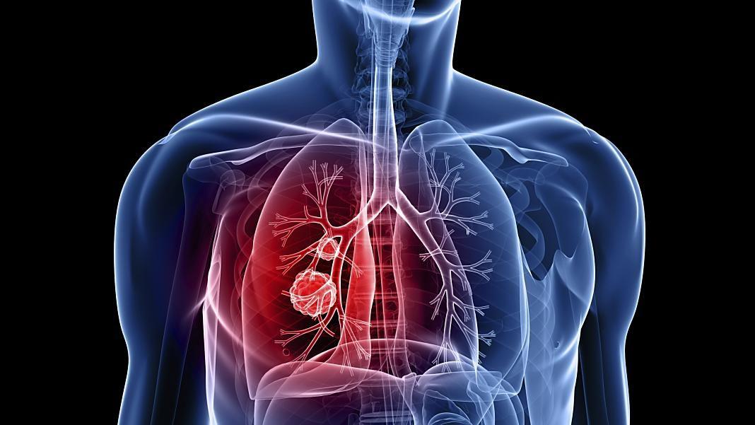 fibrosis-quistica+1