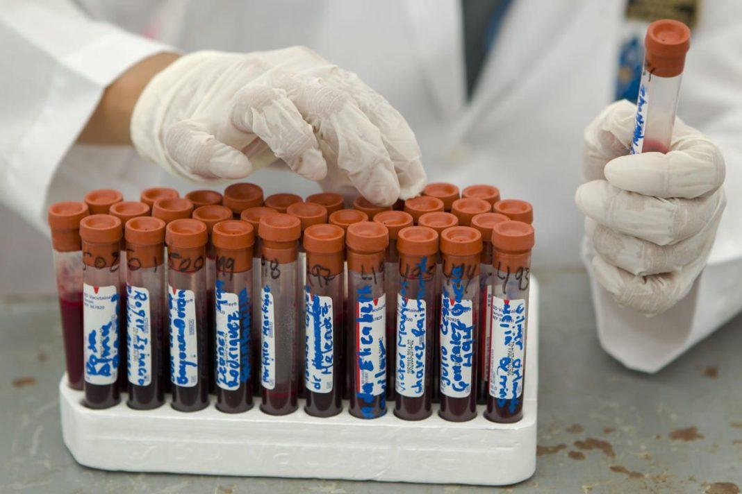 Virrus sida vih muestra clinica laboratorio