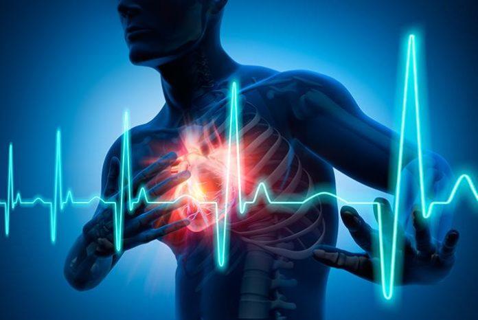 Insuficiencia Cardiaca+1