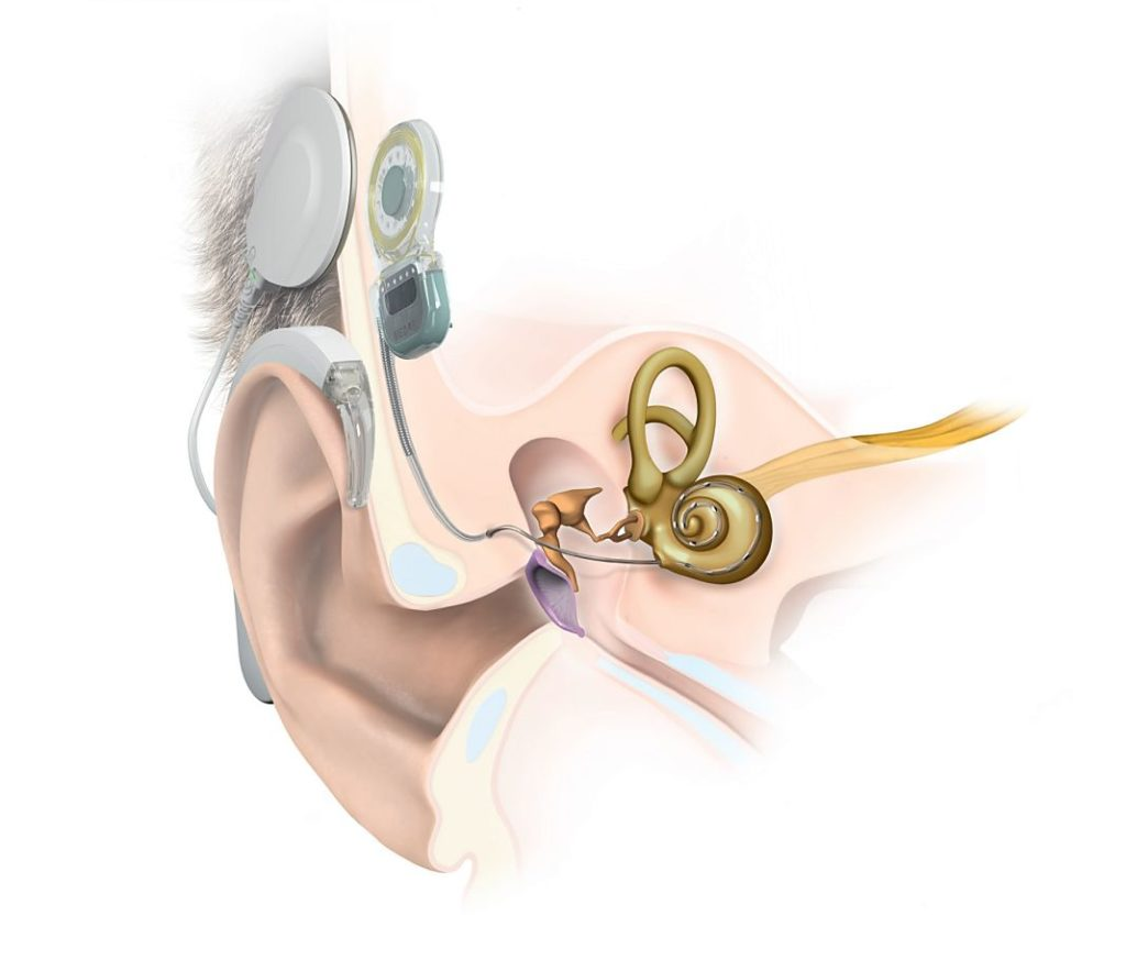 Implante Coclear SYNCHRONY+1
