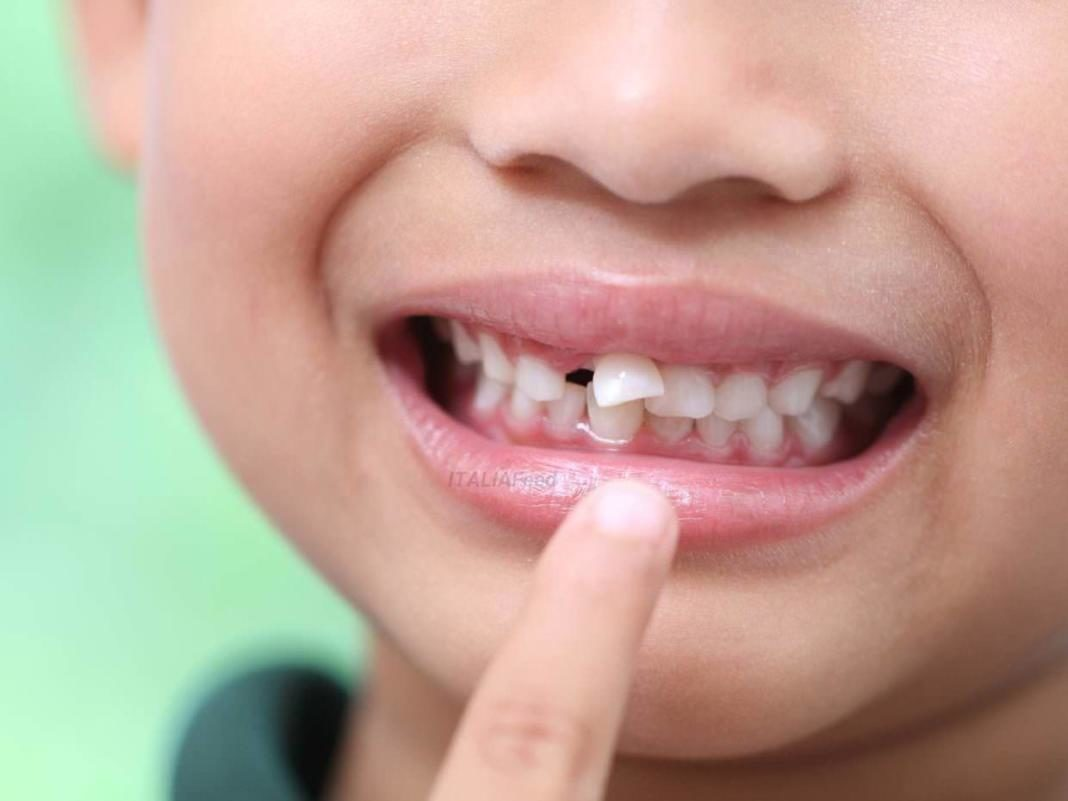 dientes leche