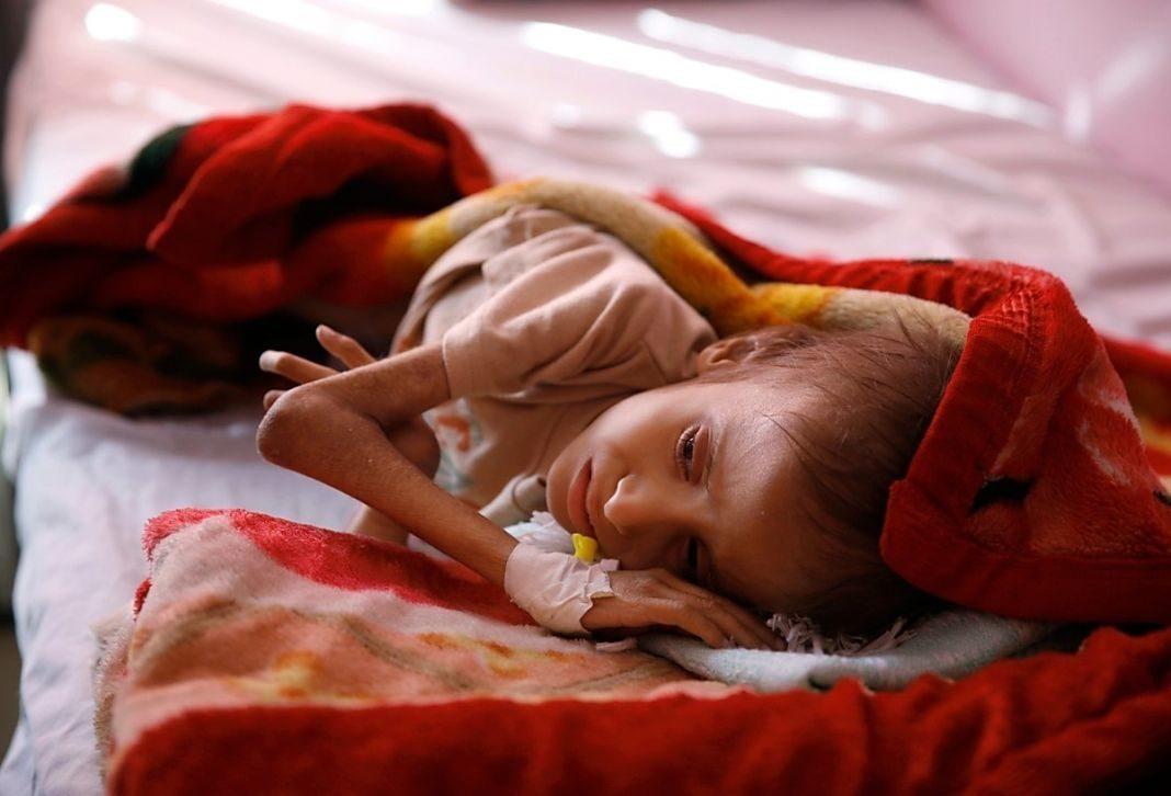 yemen niños+1