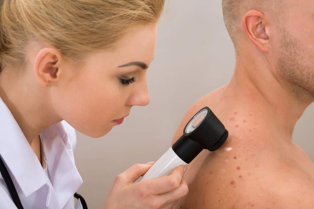 lesiones en la piel